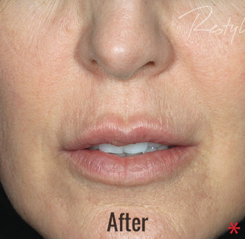 Restylane Before & After Patient #4424