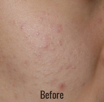 Spectra Laser Peel Before & After Patient #4455