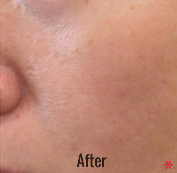 Spectra Laser Peel Before & After Patient #4463