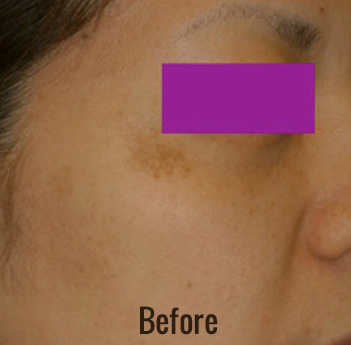 Spectra Laser Toning Before & After Patient #4472