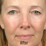 Thermage Before & After Patient #4477