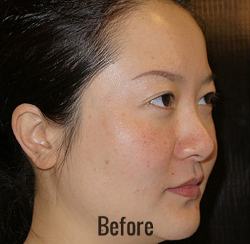 Thermage Before & After Patient #4484