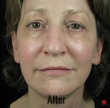 Thermage Before & After Patient #4485