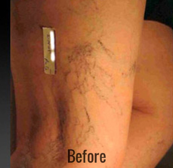 Vein Therapy Before & After Patient #4495