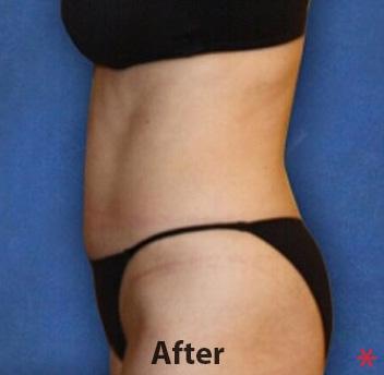 Zerona Before & After Patient #4512