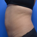 CoolSculpting Before & After Patient #6033