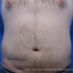 CoolSculpting Before & After Patient #6036