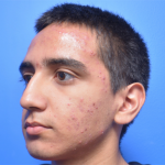 Chemical Peel Before & After Patient #6039