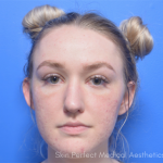 Chemical Peel Before & After Patient #6042