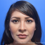 Restylane Before & After Patient #6048