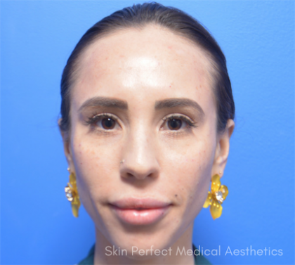 Restylane Lyft Before & After Patient #6051