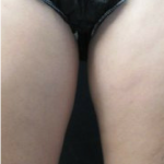 CoolSculpting Before & After Patient #6057