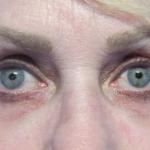 iLYFT Before & After Patient #6001