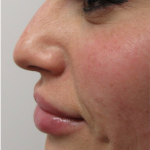 Restylane Lyft Before & After Patient #6069