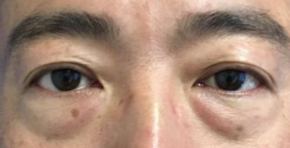 iLYFT Before & After Patient #6007