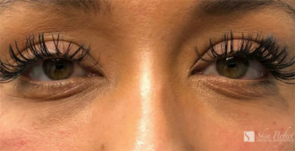 Restylane Lyft Before & After Patient #6017