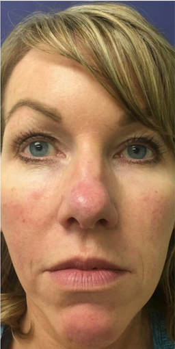 Restylane Before & After Patient #6054
