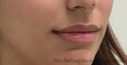 Restylane Kysse Before & After Patient #8968