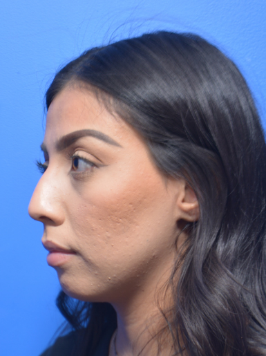 Restylane Lyft Before & After Patient #8931