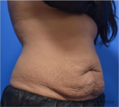 CoolSculpting Before & After Patient #9292