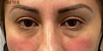 Restylane Lyft Before & After Patient #9312