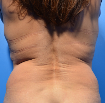 CoolSculpting Elite Before & After Patient #9621