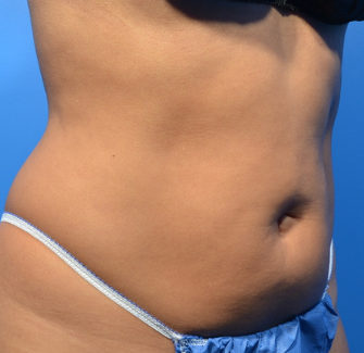 CoolSculpting Elite Before & After Patient #9579